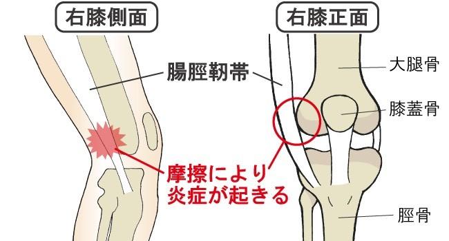 膝 の 外側 が 痛い